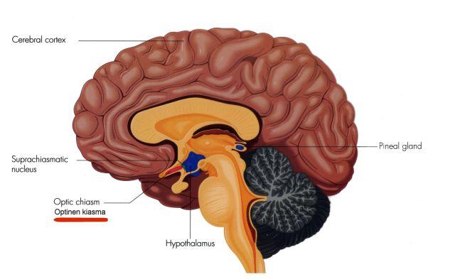 2.Suprakiasmaattisen tumakkeen sijainti aivoissa (alleviivattu punaisella)